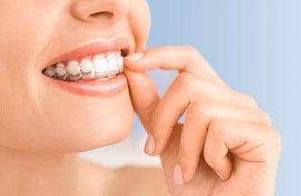 Eine junge Frau zeigt ihre Zähne, auf denen sich die nahezu unsichtbaren Aligner von Invisalign befinden. Mit einer Hand rückt sie die Spange in die richtige Position.